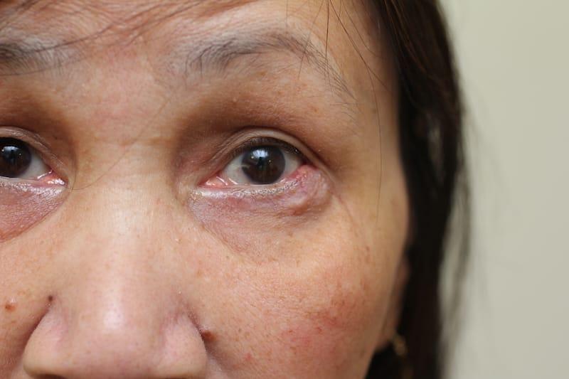 Sebaceous gland carcinoma